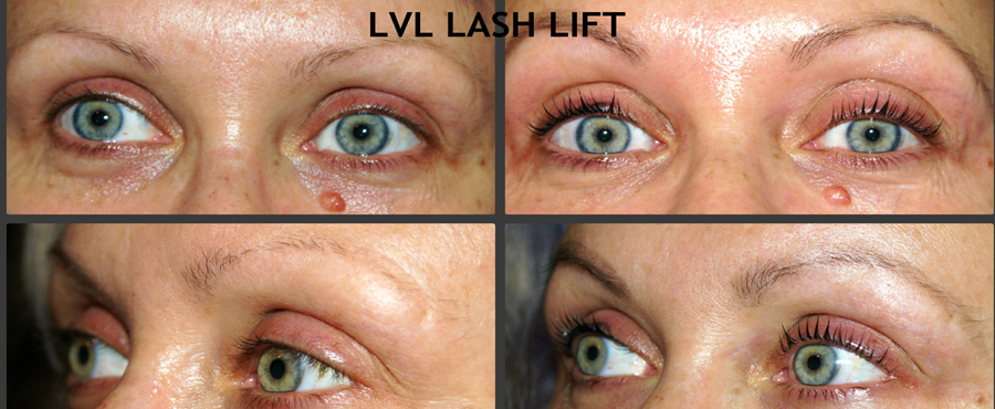 LVL-Lashes-before-and-after-at-Springs